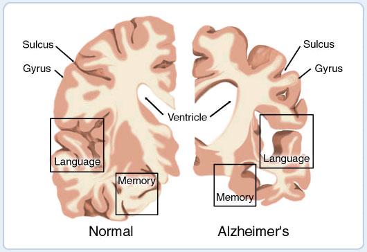 <!--:it-->Scoperto il test fai da te per individuare l&#8217;Alzheimer<!--:--><!--:en-->Discovered the DIY test to detect Alzheimer<!--:--><!--:fr-->Découvert le test possible à faire tout seul pour reconnaître l&#8217;Alzheimer<!--:-->